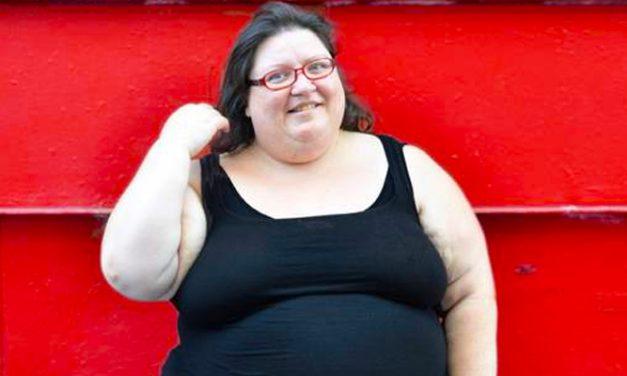 Ezek az elhízás szövődményei, jobb lenne elkerülni őket!