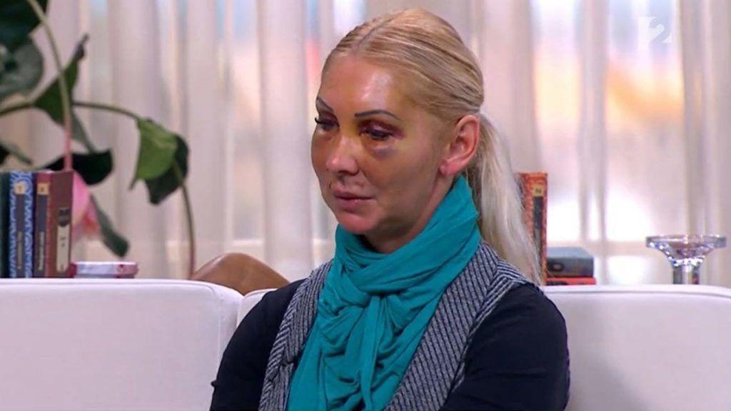 Beperelte Orosz Bernadettet az a férfi, aki korábban brutálisan bántalmazta az asszonyt